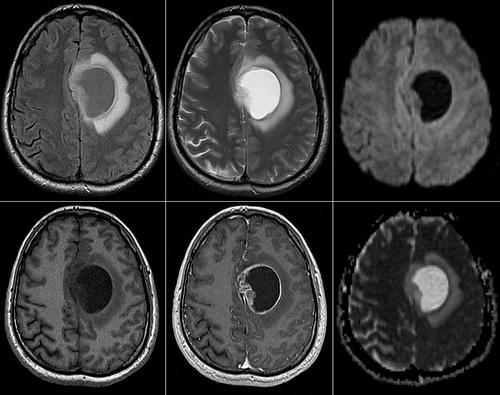 astrocitoma