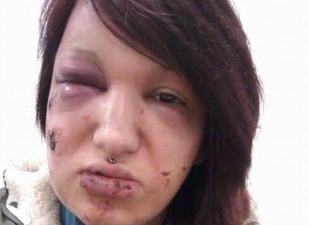 """Novio desfigura a mordidas el rostro de su pareja para que """"nadie más volviera a mirarla"""""""