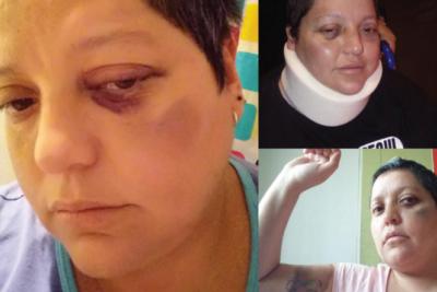 Movilh denuncia brutal golpiza a mujer en la vía pública por su orientación sexual