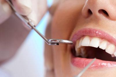 Operativo odontológico beneficia a 81 magallánicos