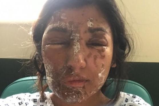 Alarmante cifra en Reino Unido: policía reportó 400 ataques con ácido en seis meses