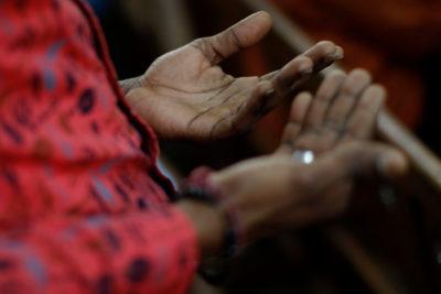 A esto llegó Chile: haitianos piden exámenes para demostrar que no tienen lepra