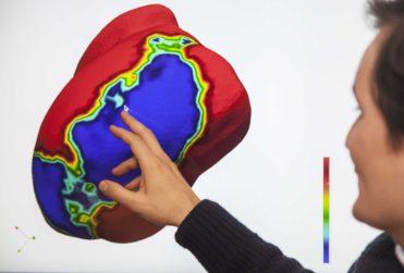 Modelan matemáticamente un infarto al corazón para buscar nuevos tratamientos