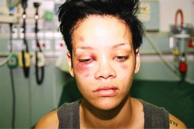 VIDEOS | Chris Brown ahora lucra con su documental contando cómo golpeó a Rihanna