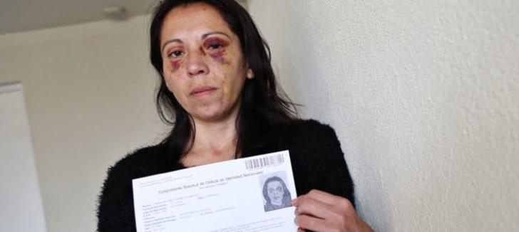 Víctima de violencia intrafamiliar debió renovar foto de carnet con lesiones en su rostro