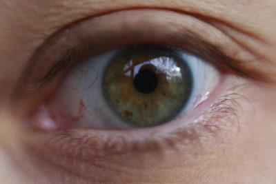 """ISP llama a no atenderse en clínica que ofrece cambiar el color de ojos """"con una simple cirugía"""""""