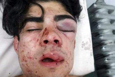 Ataque xenófobo en Argentina: creyeron joven era chileno y lo golpearon hasta quedar desfigurado
