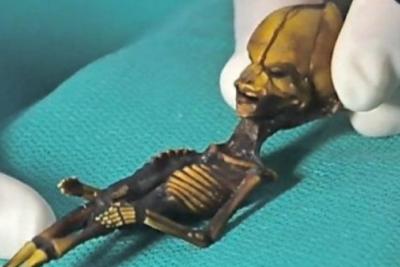 """Fin al misterio de la """"alienígena"""" encontrada en Atacama: era una niña con mutaciones"""