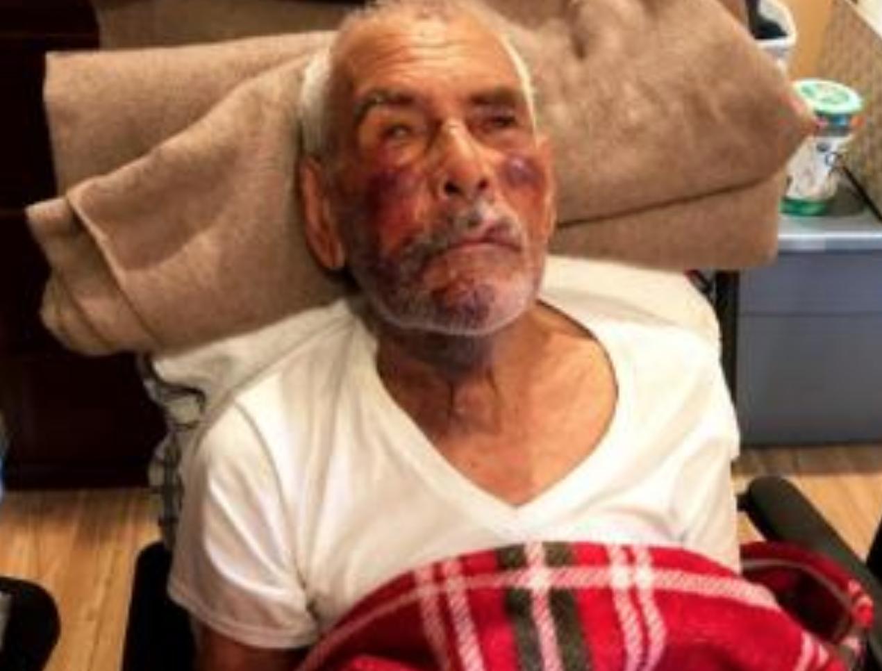 """Golpean en el suelo a anciano mexicano de 91 años en EE.UU.: le dijeron """"vuelve a México"""""""