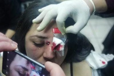 Estudiante de U. Iberoamericana herida con perdigones tras accionar de Carabineros