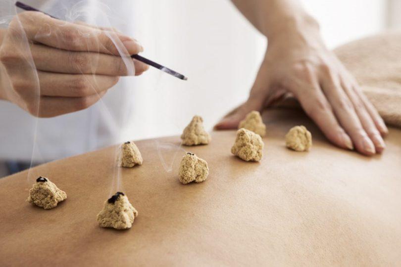 Diputado de Evópoli quiere que Fonasa cubra la acupuntura, reiki y el uso de imanes