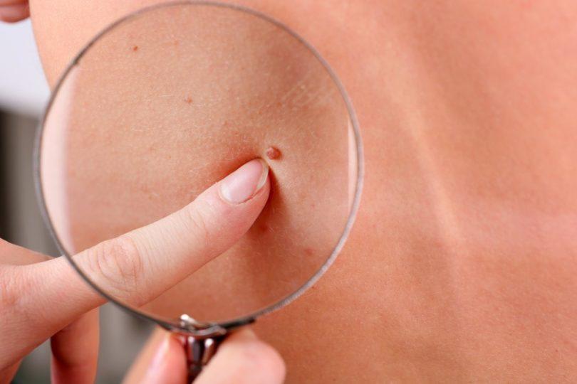 Melanoma: el agresivo cáncer de piel cuya mortalidad va en aumento