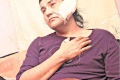 """""""Me dio con un machete en la cabeza"""": denuncian brutal agresión a mujer trans en Ñuble"""