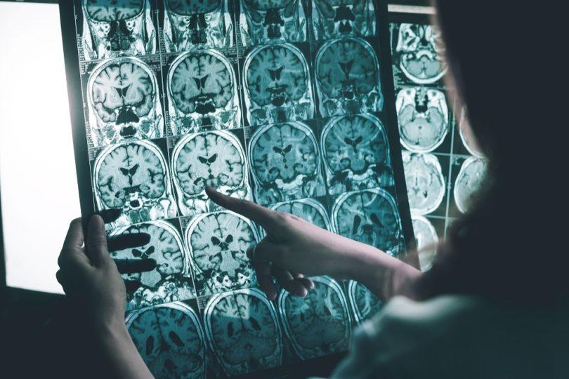 Científicos chilenos desarrollan tecnología que revolucionará el tratamiento de esclerosis múltiple