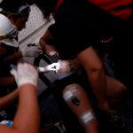 """Carabineros no descarta que lesiones oculares sean provocadas por """"civiles criminales"""""""