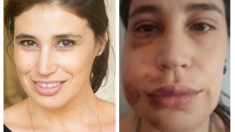 INDH presenta querellas por apremios ilegítimos contra actriz María Paz Grandjean