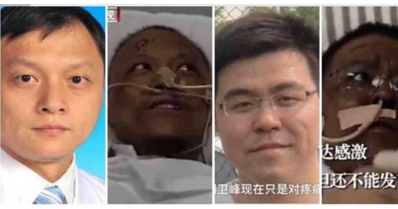 """""""Quedaron irreconocibles: médicos de Wuhan sufren extraño cambio de color tras sobrevivir al coronavirus"""""""