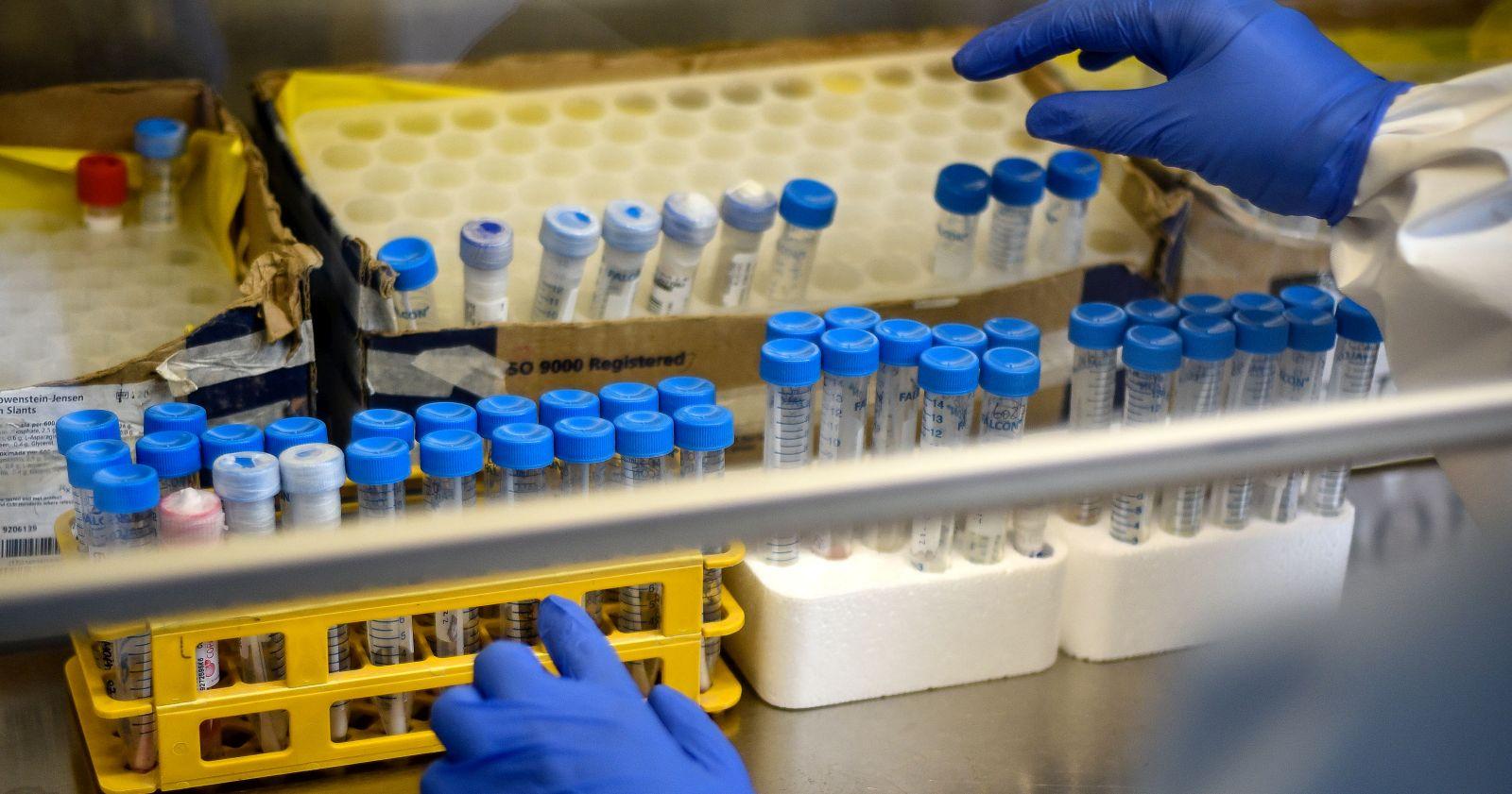 """""""Falla en laboratorio de Antofagasta deja casi 800 muestras de PCR en espera"""""""