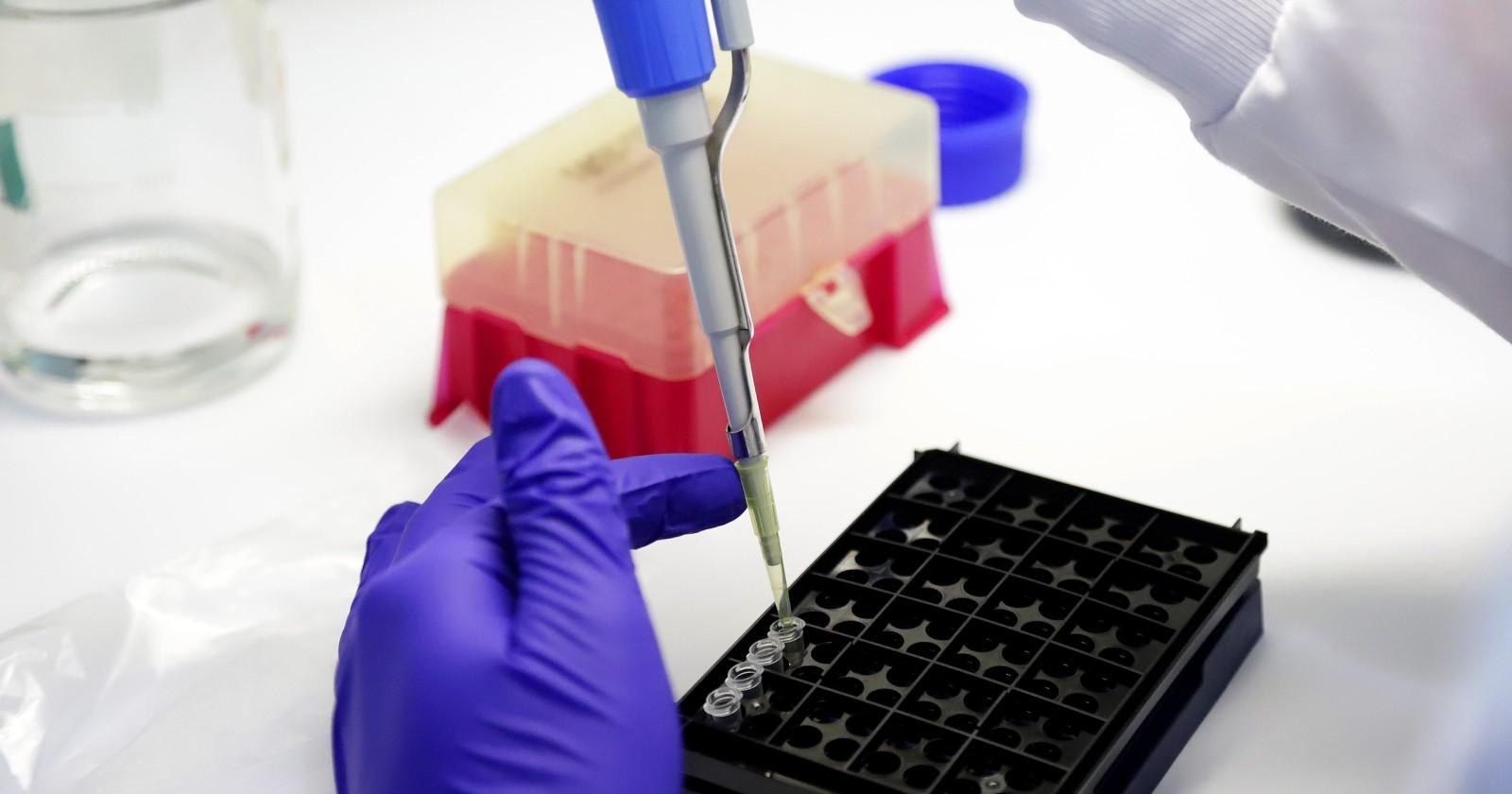 Alcaldes de la zona sur denuncian reducción de testeos PCR