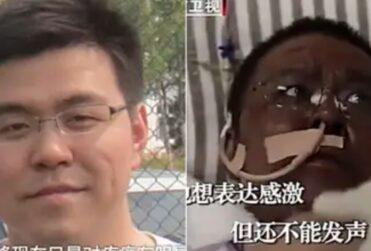 Murió médico de Wuhan que cambió de color de piel tras sufrir coronavirus