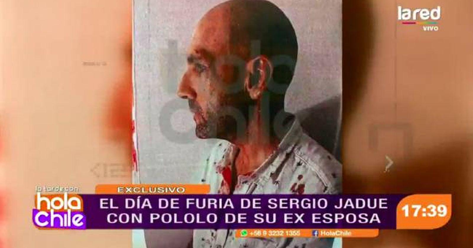 """""""Los detalles de la violenta pelea de Sergio Jadue en Miami"""""""