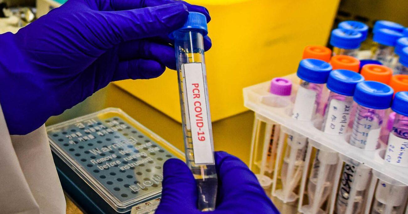 Se informó que las muertes a causa de la pandemia ya superan las 17.000. Foto: Agencia UNO