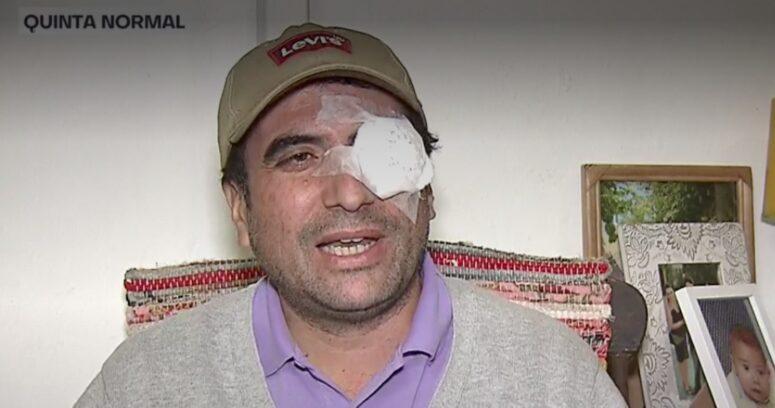 Candidato a concejal de RN por Quinta Normal recibe balín en el ojo durante cierre de campaña