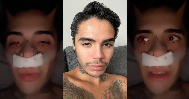 Leo Méndez tuvo que someterse a operación en su nariz por golpiza que sufrió hace años